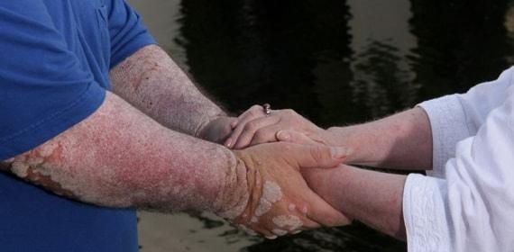 Псориатический артрит - симптомы, причины и лечение в Москве