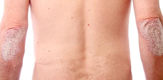 Вульгарный псориаз - симптомы, причины и лечение в Москве