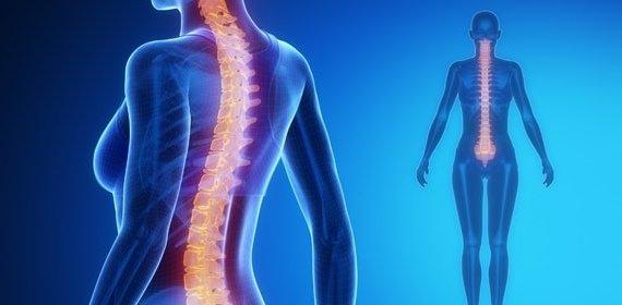 Болят все суставы болезнь бехтерева орлетт на плечевой сустав