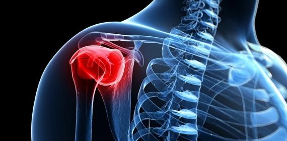 Бурсит левого плечевого сустава лечение суставов капельница