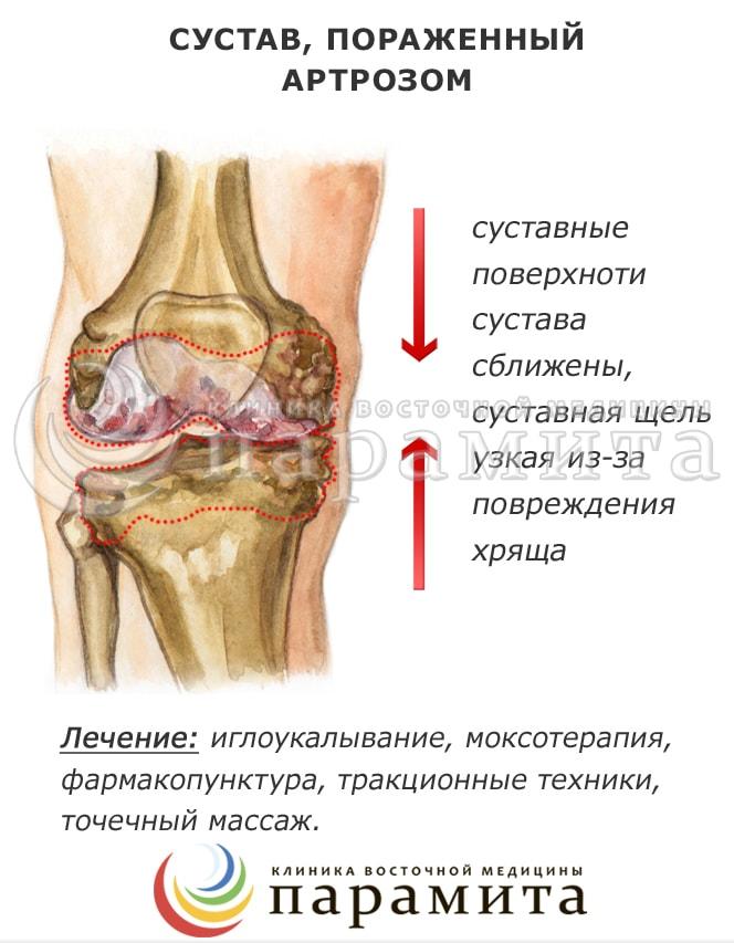 Артроз суставов стопы при плоскостопии - плоскостопие.