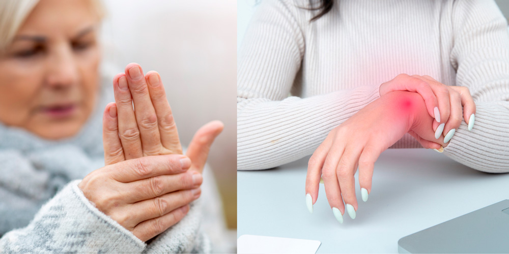 Симптомы артрита кистей рук