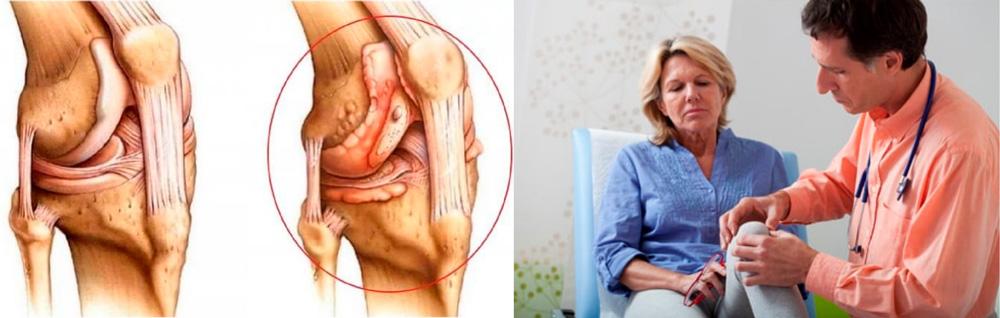Острый гнойный артрит коленного сустава