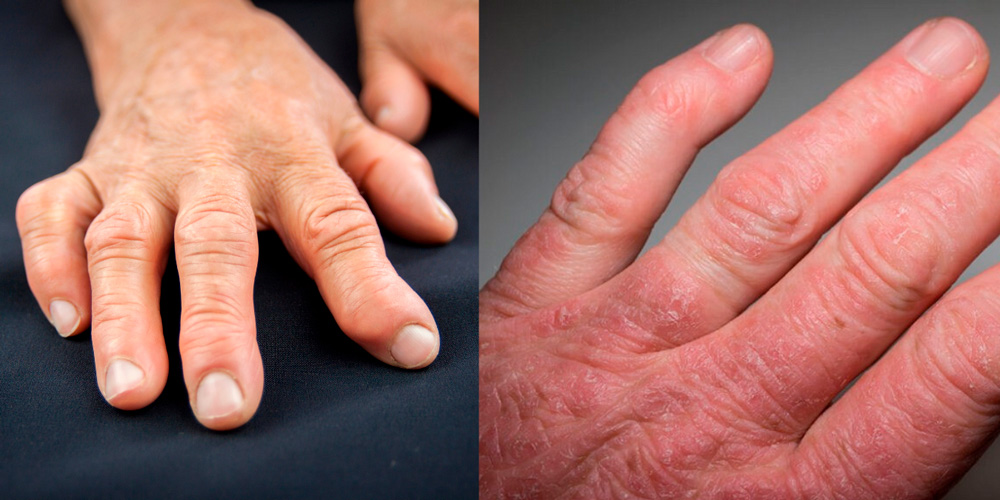 Ревматоидный и псориатический артрит рук