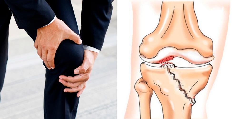 Симптомы посттравматического артрита