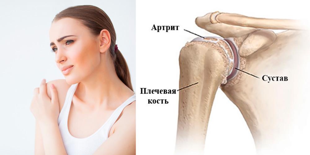 Посттравматический артрит плечевого сустава