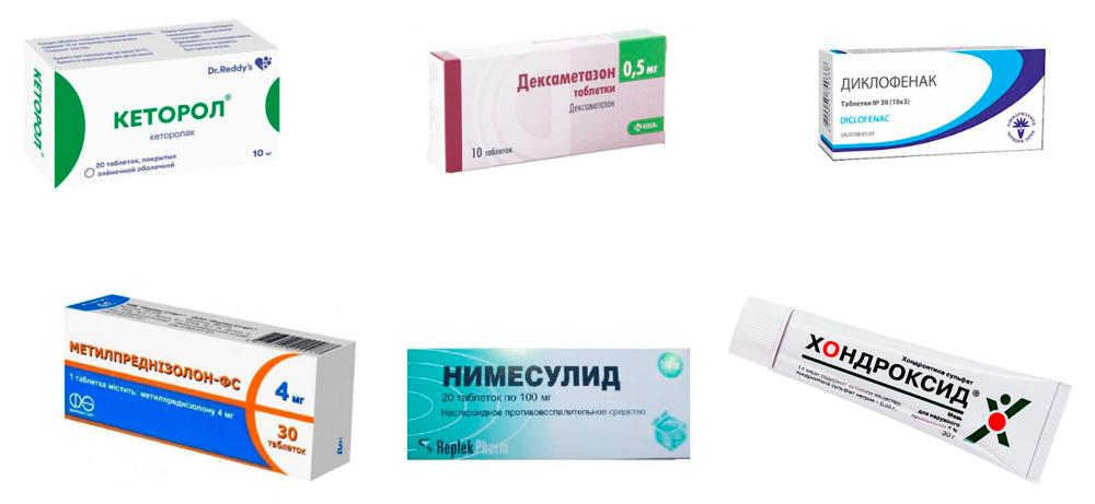 Препараты для лечения посттравматического артрита