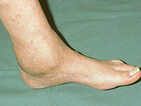 Артрит голеностопного сустава фото крутит суставы ног лечение