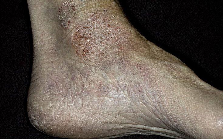 Паратравматическая экзема ноги