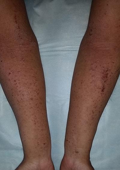 Гнойные раны лечение левомеколь