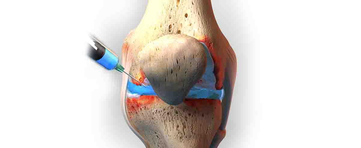 Схема проведение артроцентеза коленного сустава
