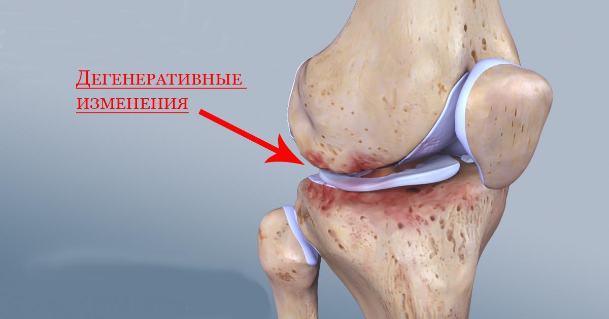 Дегенеративные изменения в коленном суставе при нехватке жидкости